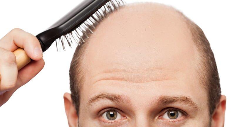 Saçlarımızı Kaybetmemize Neden Olan 9 Etken